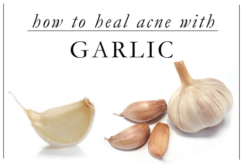 5 Surprising ways to use garlic.  Garlic is so cheap and plentiful everyone should use these!